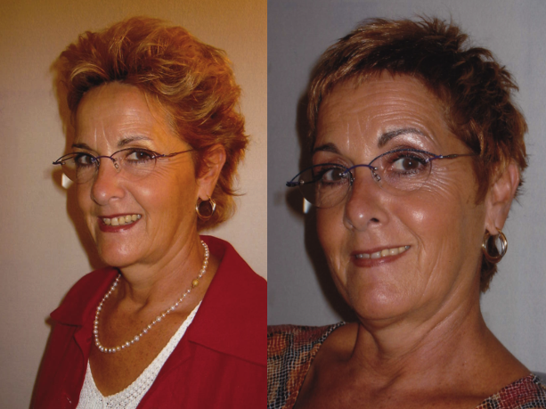 Relooking Coiffure | Image Nouvelle